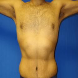 Manhattan abdominoplasty after 8